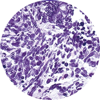 淡紫擬青黴菌:Paecilomyces lil